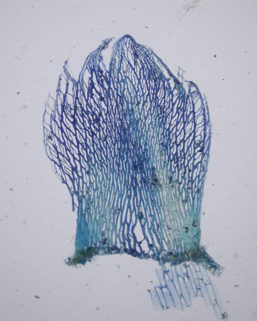 Sphagnum fimbriatum stem leaf (stained).